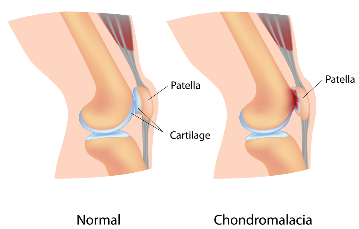 Chondromalacia Injuries